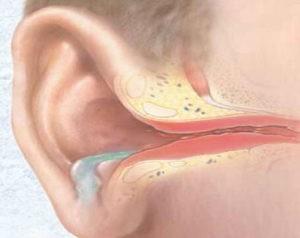 Течет с уха