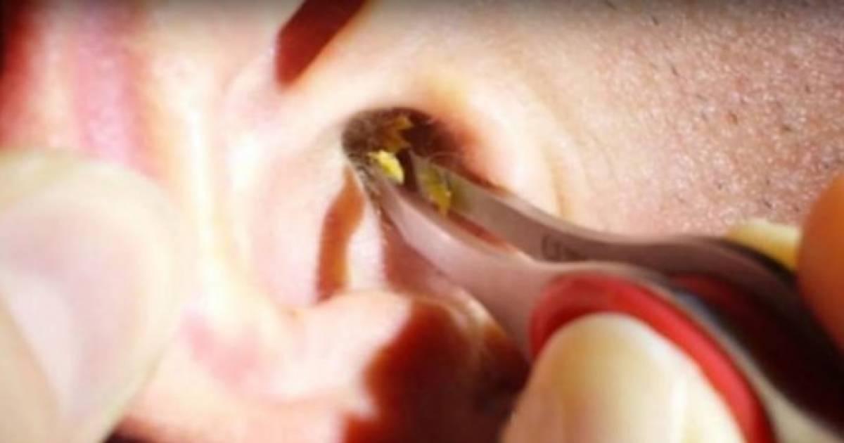 Капли для удаления ушной пробки