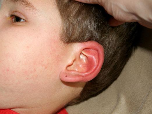 Почему могут гореть уши