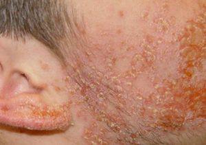 Болезнь на лице
