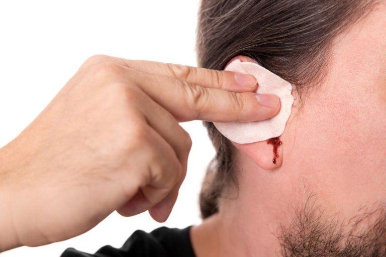 Кровь из уха при отите: причины и лечение
