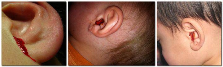 Кровь в ухе у ребенка