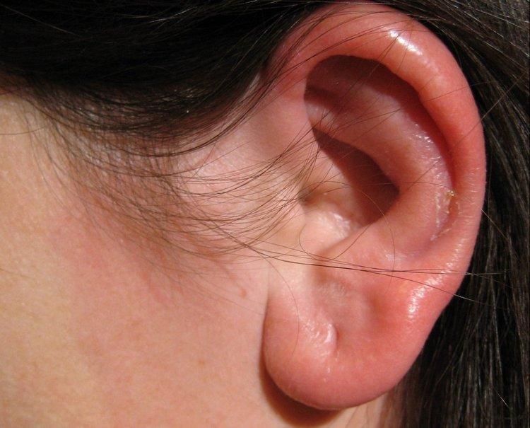 Опухшее ухо