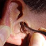 Грязное ухо
