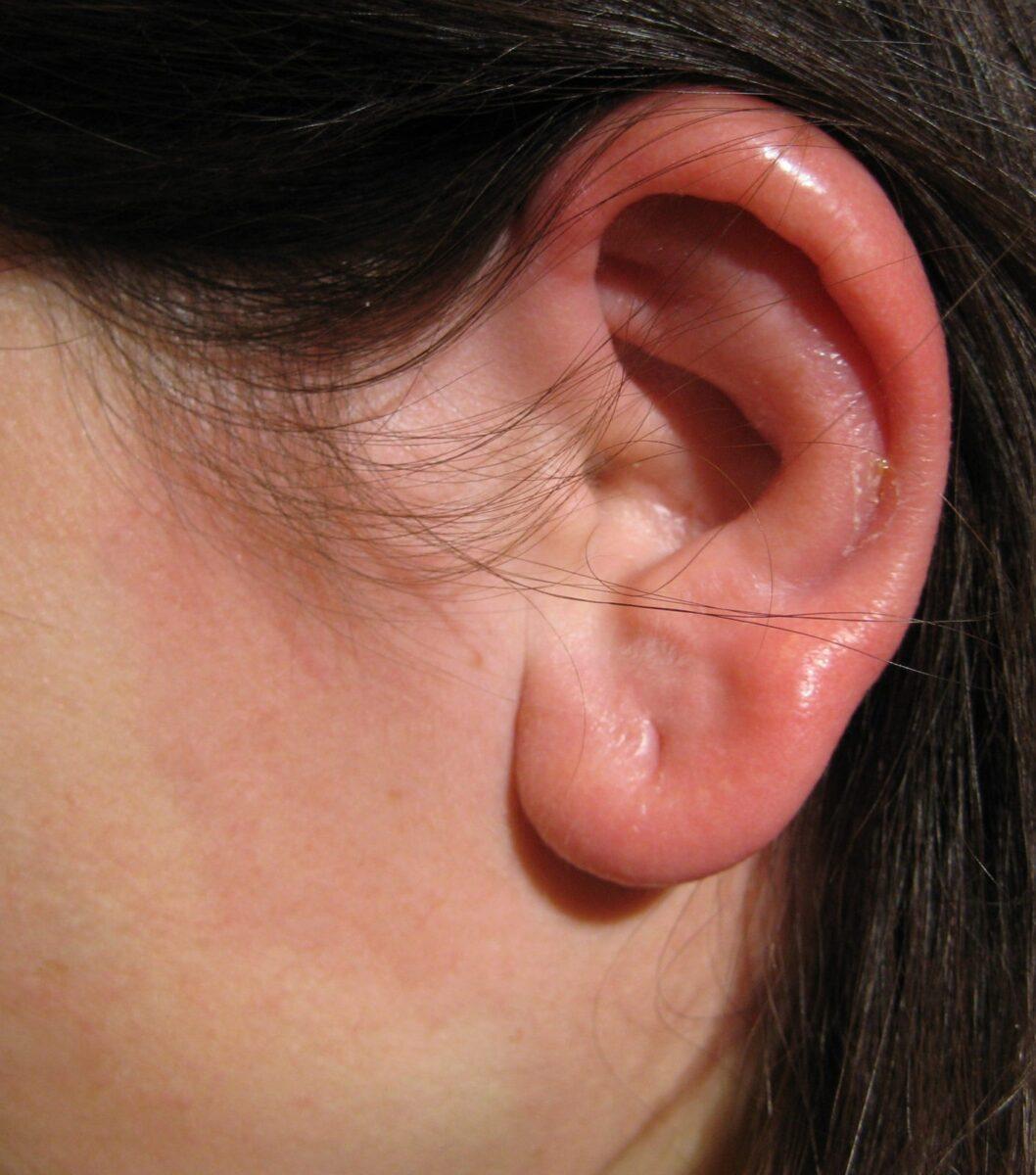 У девушки опухло ухо