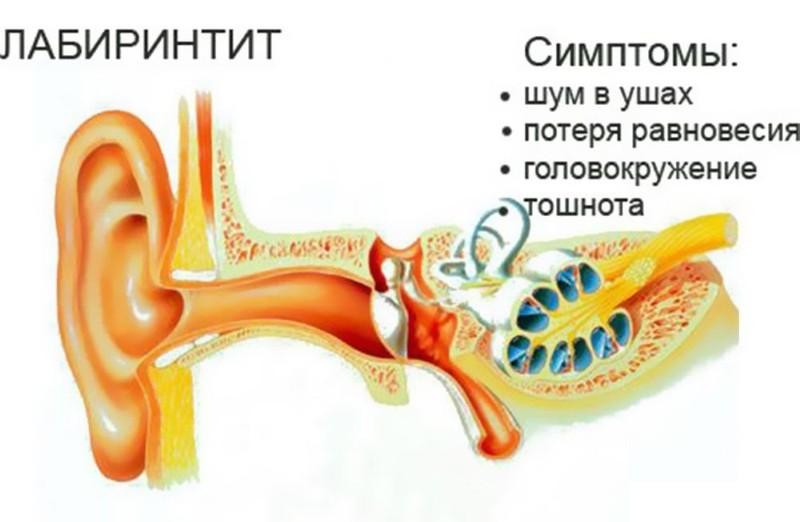 Болезнь уха